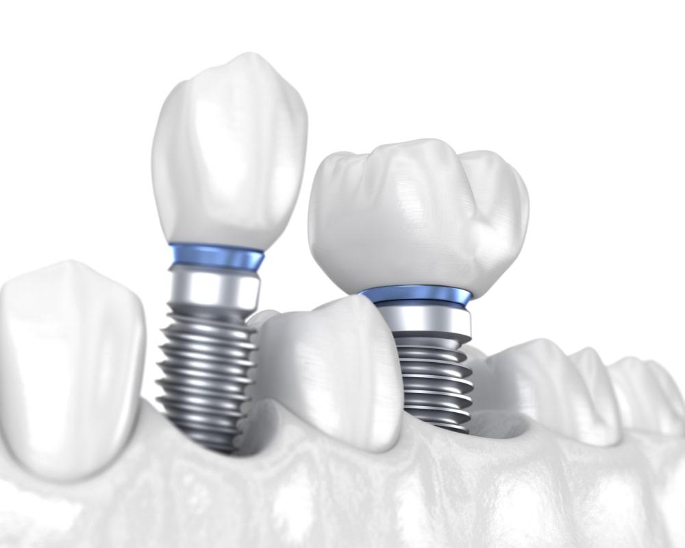Un traitement d'implantologie
